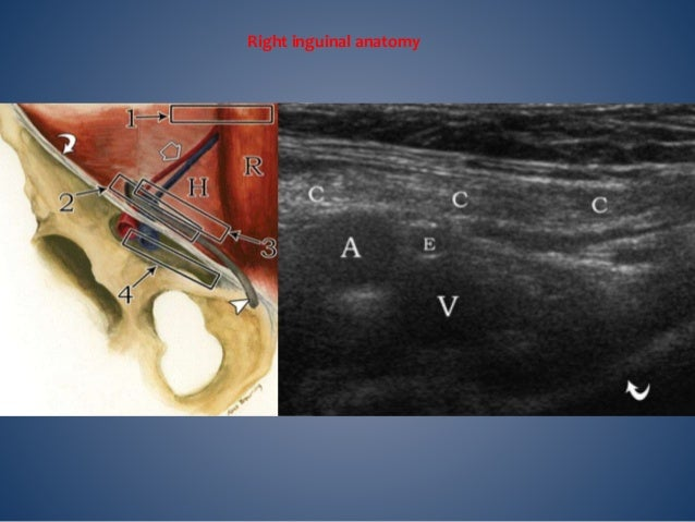 Long-axis views Left, Image shows the right direct inguinal hernia sac lying posterior to the spermatic cord (SC). Right, ...