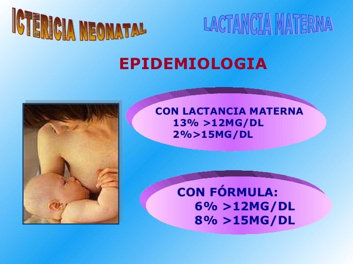 ICTERICIA NEONATAL LACTANCIA MATERNA <ul><li>CON LACTANCIA MATERNA </li></ul><ul><ul><li>13% >12MG/DL </li></ul></ul><ul><...
