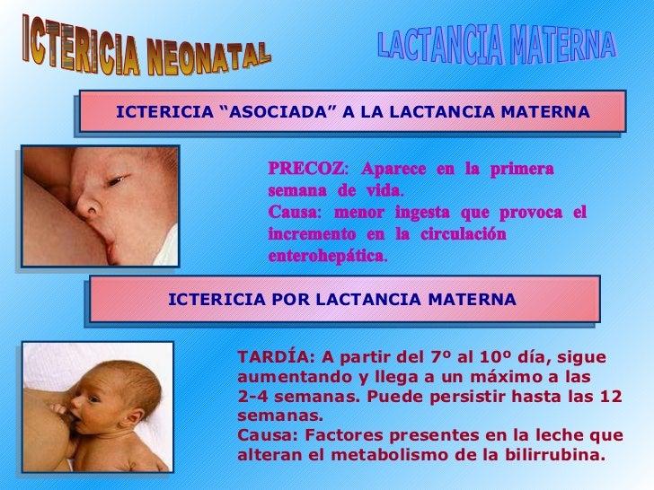 "ICTERICIA NEONATAL LACTANCIA MATERNA ICTERICIA ""ASOCIADA"" A LA LACTANCIA MATERNA ICTERICIA POR LACTANCIA MATERNA  <ul><ul>..."