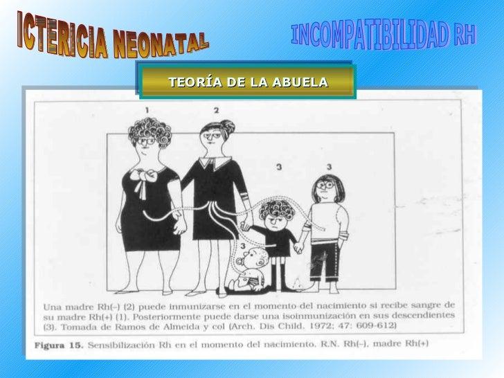 ICTERICIA NEONATAL INCOMPATIBILIDAD RH TEORÍA DE LA ABUELA