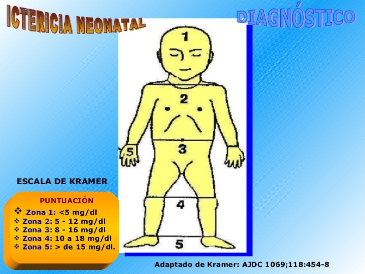 ICTERICIA NEONATAL DIAGNÓSTICO <ul><li>Zona 1:  <5 mg/dl </li></ul><ul><li>Zona 2:  5 - 12 mg/dl </li></ul><ul><li>Zona   ...
