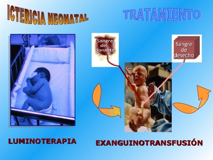 ICTERICIA NEONATAL TRATAMIENTO LUMINOTERAPIA EXANGUINOTRANSFUSIÓN