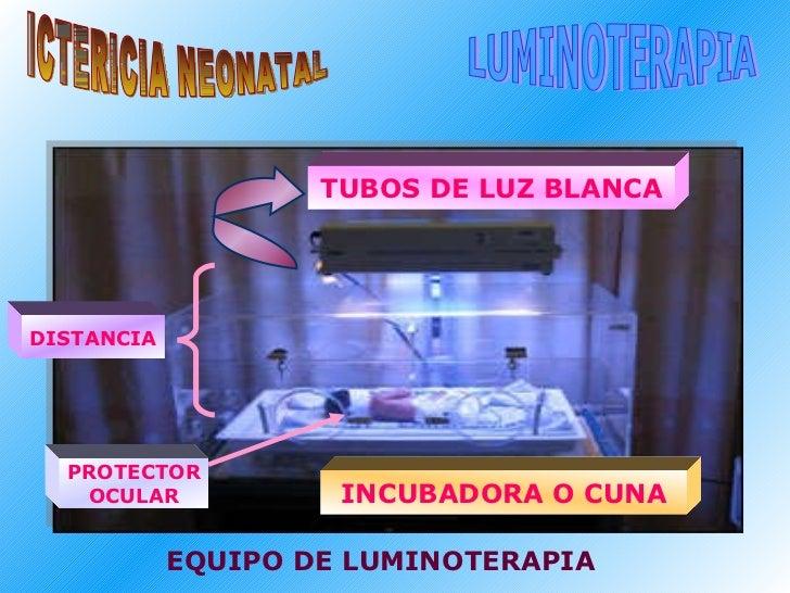 ICTERICIA NEONATAL LUMINOTERAPIA EQUIPO DE LUMINOTERAPIA TUBOS DE LUZ BLANCA DISTANCIA INCUBADORA O CUNA PROTECTOR OCULAR