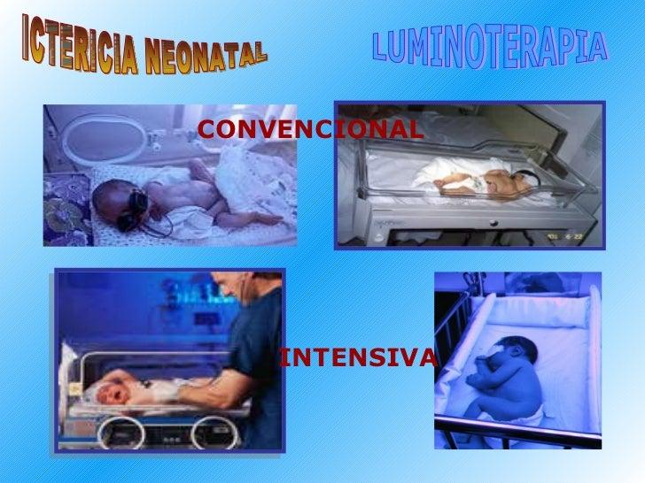 ICTERICIA NEONATAL LUMINOTERAPIA CONVENCIONAL INTENSIVA