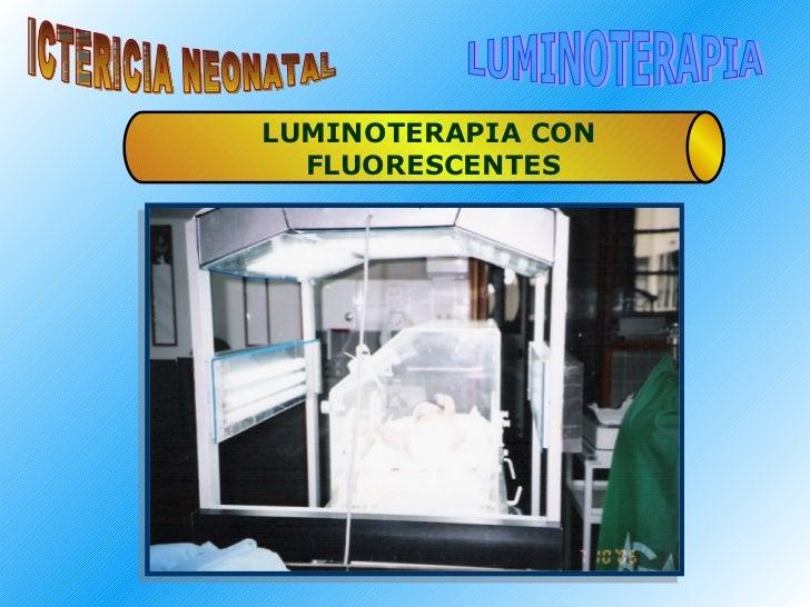 ICTERICIA NEONATAL LUMINOTERAPIA LUMINOTERAPIA CON  FLUORESCENTES
