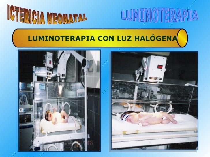 ICTERICIA NEONATAL LUMINOTERAPIA LUMINOTERAPIA CON LUZ HALÓGENA