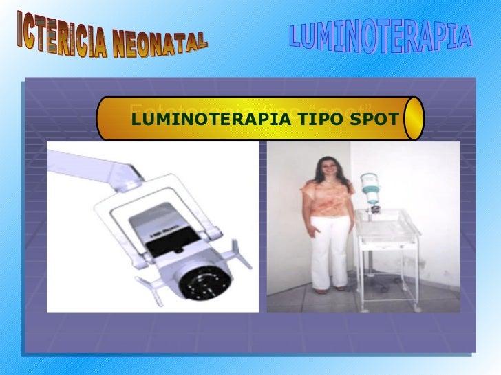 ICTERICIA NEONATAL LUMINOTERAPIA LUMINOTERAPIA TIPO SPOT