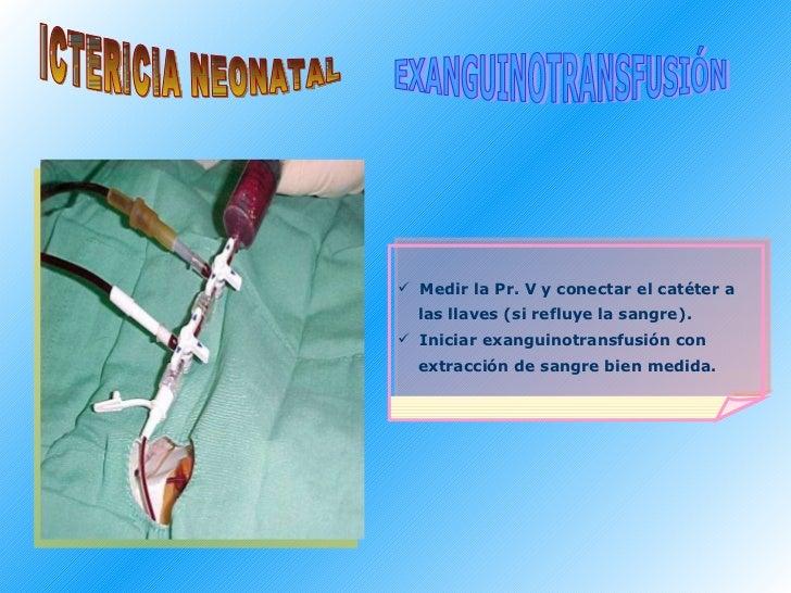<ul><li>Medir la Pr. V y conectar el catéter a  </li></ul><ul><li>las llaves (si refluye la sangre).  </li></ul><ul><li>In...