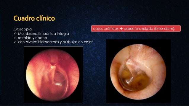 Otoscopia  Membrana timpánica íntegra  retraído y opaco  con niveles hidroaéreos y burbujas en caja* casos crónicos  a...