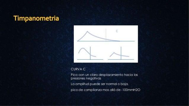 CURVA C Pico con un claro desplazamiento hacia las presiones negativas La amplitud puede ser normal o baja. pico de compli...