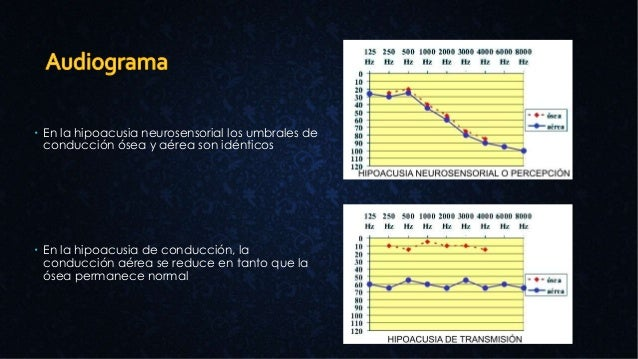  En la hipoacusia neurosensorial los umbrales de conducción ósea y aérea son idénticos  En la hipoacusia de conducción, ...