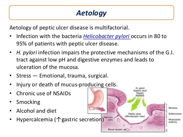 peptic ulcer disease Peptic ulcer disease is a condition where there's a raw area in the lining of the stomach or upper part of the small intestine.