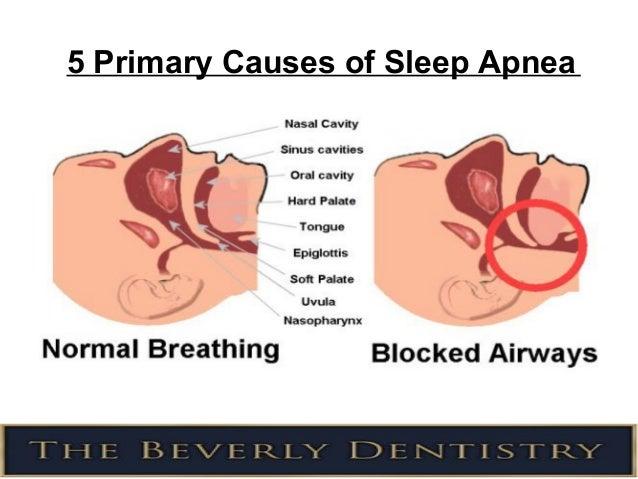 does sleep apnea machine cause gas