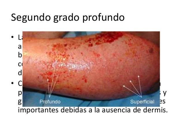 Patologia quirurgica quemaduras for Quemaduras de cuarto grado