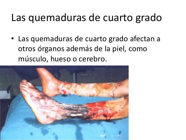 Patologia Quirurgica Quemaduras