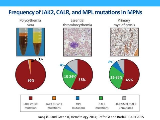 ProposedRevised ET Diagnostic Criteria 2008 (Current) Proposed Revision Tefferi A, et al. Leukemia 2014 All 4 major or fir...