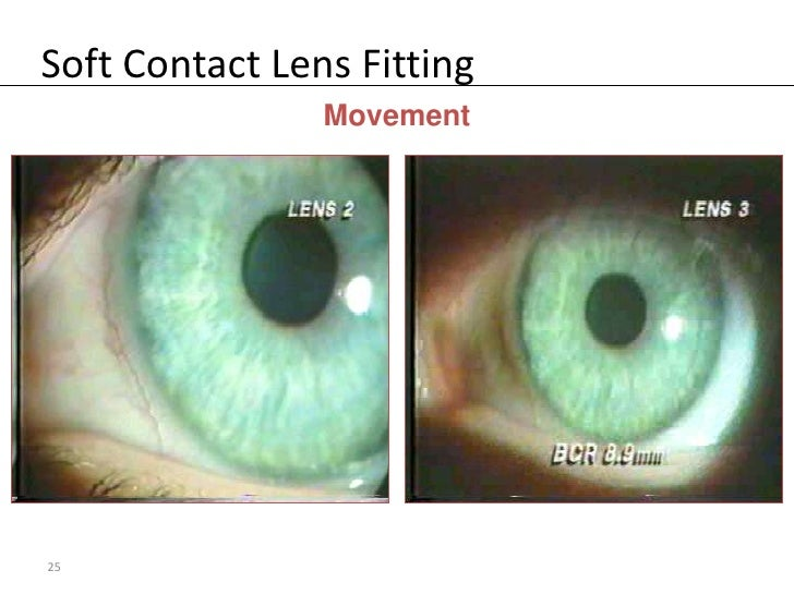 Soft Contact Lens Fitting