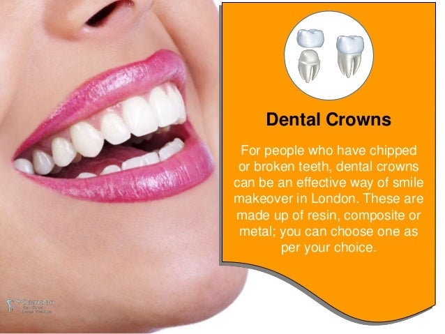 Smile Makeover: Ways to Restore the Appearance of Your Smile Slide 3