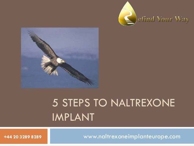 5 STEPS TO NALTREXONE IMPLANT +44 20 3289 8289  www.naltrexoneimplanteurope.com
