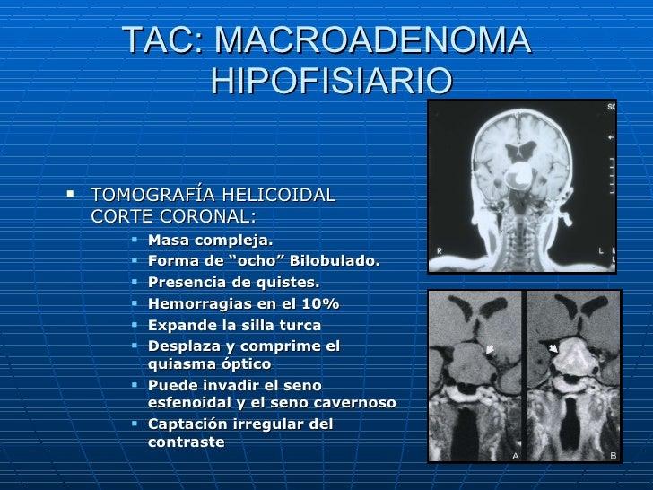 Microadenoma hipofisiario