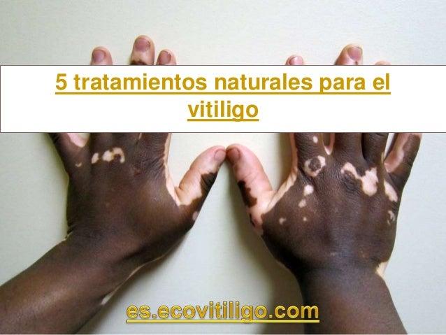 5 tratamientos naturales para el vitiligo
