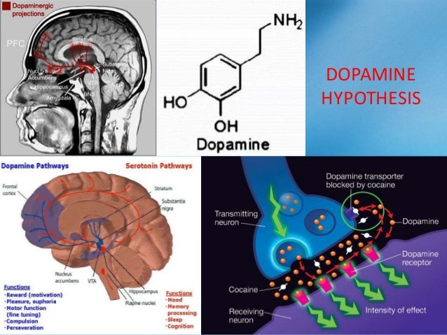 Normal Level of Dopamine In The Human Brain Elevated Level of Dopamine In The Brain of a Schizophrenic Patient (specifical...
