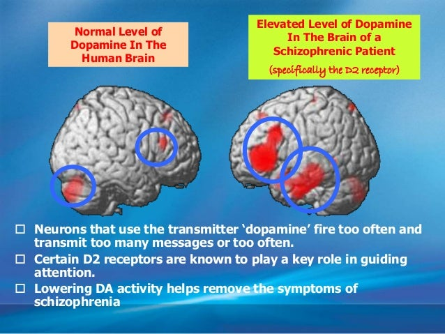 • Evidence comes from – studies with drugs – post mortems – pet scans Brain of schizophrenic patients produces more dopami...