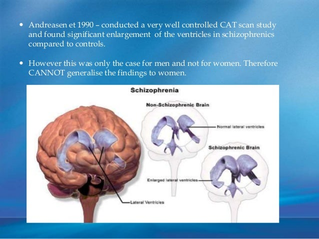 an essay on decreasing brain matter in schizophrenia Neuroplasticity and depression the brain changes throughout  such changes to specific brain areas happen quickly-in a matter of weeks to  schizophrenia,.