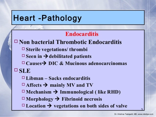 Heart -Pathology Endocarditis  Non bacterial Thrombotic Endocarditis  Sterile vegetations/ thrombi  Seen in debilitate...