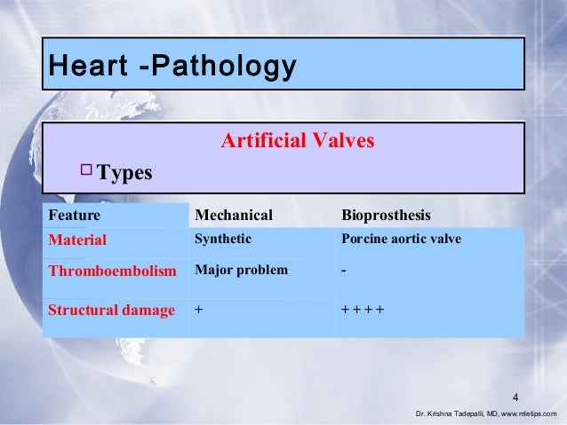 Heart -Pathology Artificial Valves Types Feature  Mechanical  Bioprosthesis  Material  Synthetic  Porcine aortic valve  T...