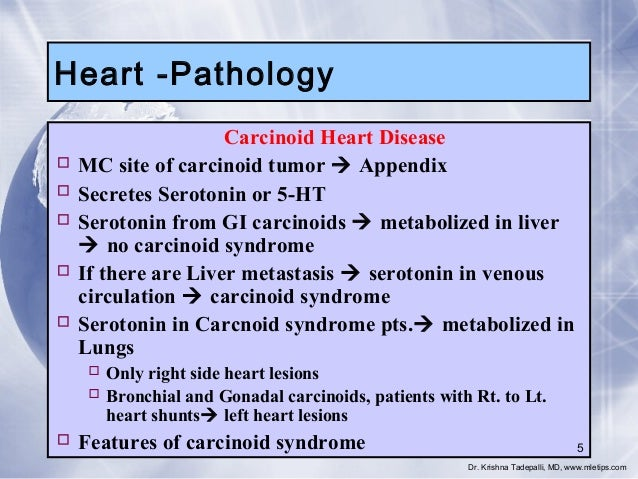 Heart -Pathology Carcinoid Heart Disease  MC site of carcinoid tumor  Appendix  Secretes Serotonin or 5-HT  Serotonin ...