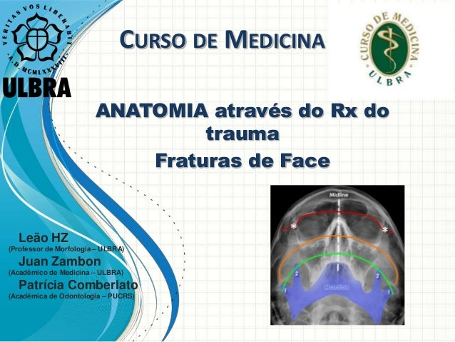 CURSO DE MEDICINA ANATOMIA através do Rx do trauma Fraturas de Face Leão HZ (Professor de Morfologia – ULBRA) Juan Zambon ...