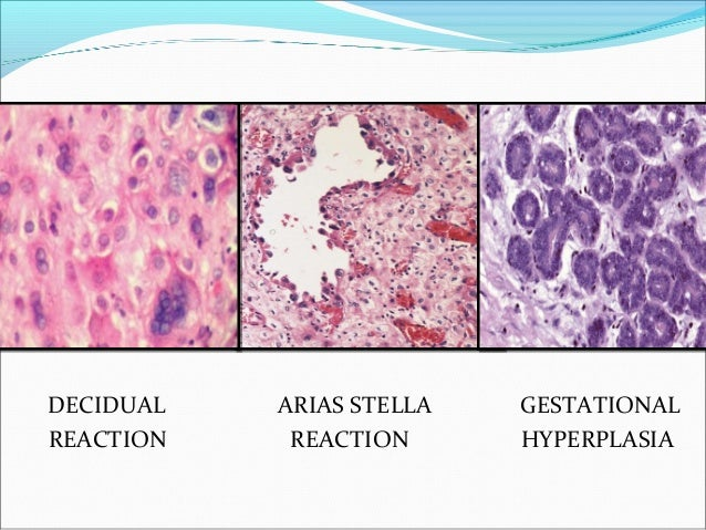 Disorders of pregnancy and placental pathology