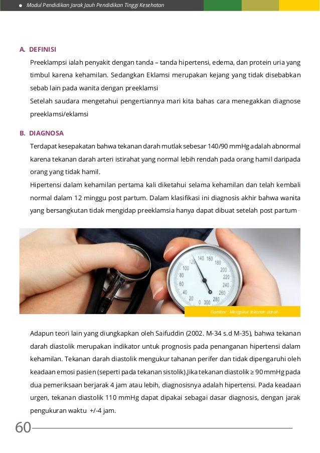 Modul Pendidikan Jarak Jauh Pendidikan Tinggi Kesehatan 60 A. DEFINISI Preeklampsi ialah penyakit dengan tanda – tanda hi...