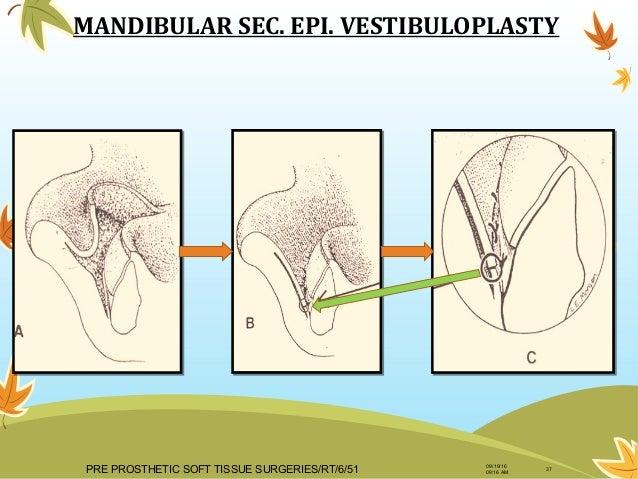 6pre Prosthetic Surgery54 Dr Rahul Tiwari