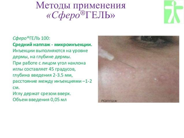 Сферогель для суставов цена мрт голеностопного сустава в уфе ребенку