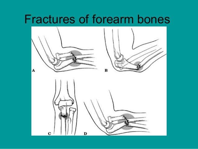 Fracture of Forearm Bones