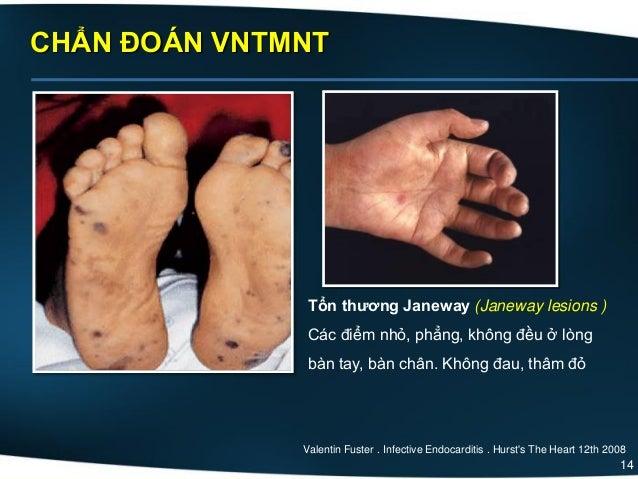 14 CHẨN ĐOÁN VNTMNT Tổn thương Janeway (Janeway lesions ) Các điểm nhỏ, phẳng, không đều ở lòng bàn tay, bàn chân. Không đ...