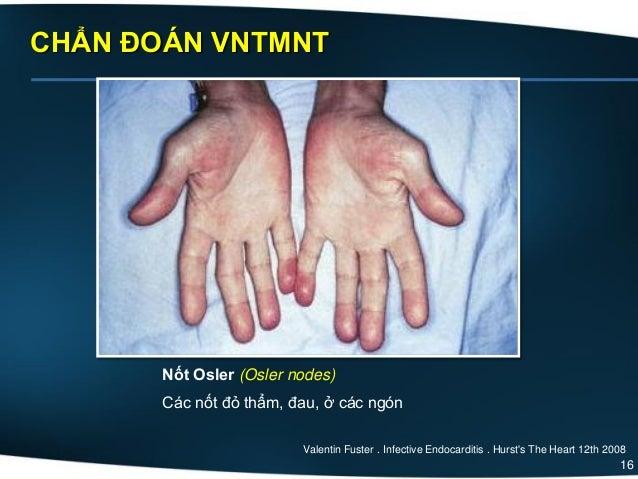 16 CHẨN ĐOÁN VNTMNT Nốt Osler (Osler nodes) Các nốt đỏ thẩm, đau, ở các ngón Valentin Fuster . Infective Endocarditis . Hu...