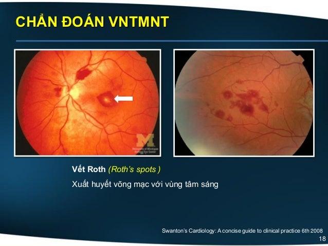 18 CHẨN ĐOÁN VNTMNT Vết Roth (Roth's spots ) Xuất huyết võng mạc với vùng tâm sáng Swanton's Cardiology: A concise guide t...