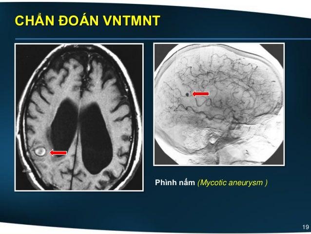 19 CHẨN ĐOÁN VNTMNT Phình nấm (Mycotic aneurysm )