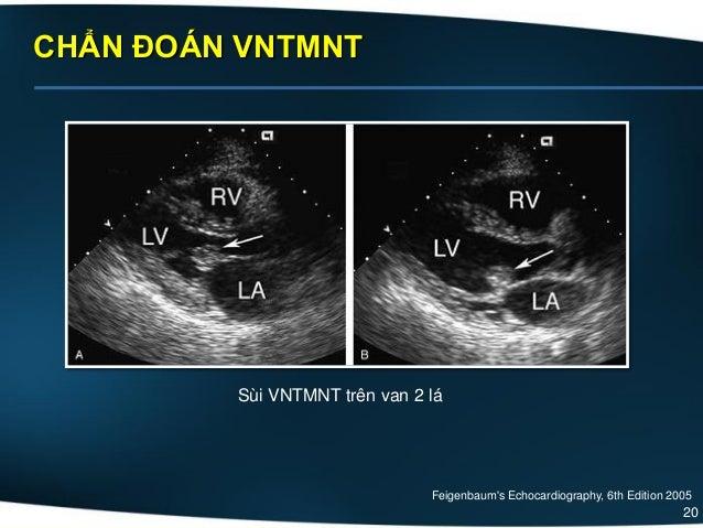 20 CHẨN ĐOÁN VNTMNT Sùi VNTMNT trên van 2 lá Feigenbaum's Echocardiography, 6th Edition 2005