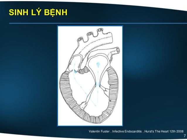 7 SINH LÝ BỆNH Valentin Fuster . Infective Endocarditis . Hurst's The Heart 12th 2008