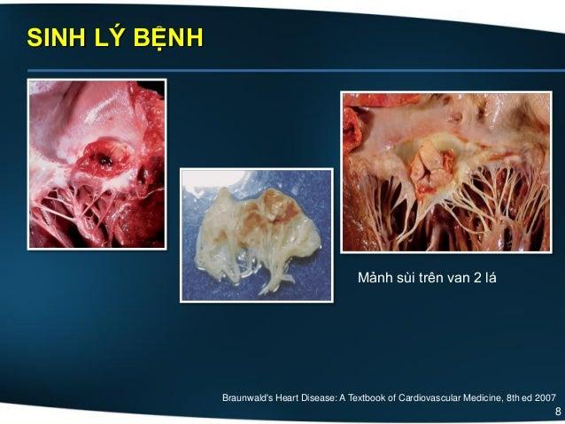 8 SINH LÝ BỆNH Braunwald's Heart Disease: A Textbook of Cardiovascular Medicine, 8th ed 2007 Mảnh sùi trên van 2 lá