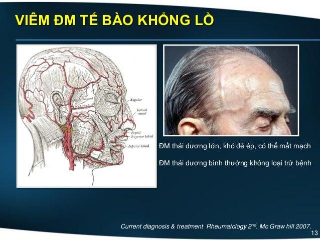 13 VIÊM ĐM TẾ BÀO KHỔNG LỒ Current diagnosis & treatment Rheumatology 2nd. Mc Graw hill 2007. ĐM thái dương lớn, khó đè ép...
