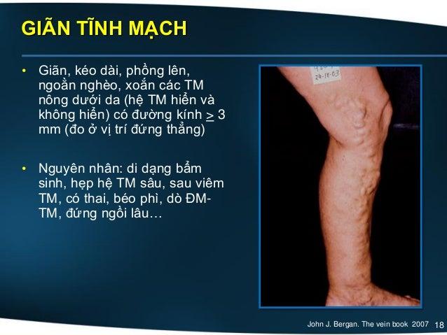 18 GIÃN TĨNH MẠCH • Giãn, kéo dài, phồng lên, ngoằn nghèo, xoắn các TM nông dưới da (hệ TM hiển và không hiển) có đường kí...