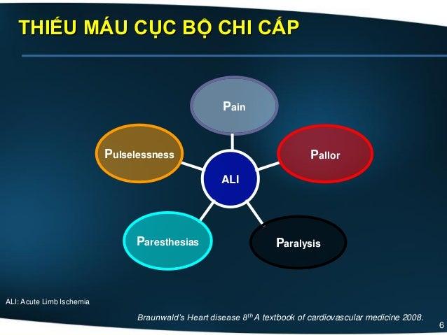 6 THIẾU MÁU CỤC BỘ CHI CẤP Pulselessness Paresthesias Paralysis Pallor ALI Pain Braunwald's Heart disease 8th A textbook o...
