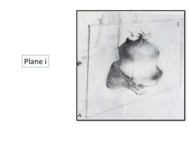 Plane ii Plane iii