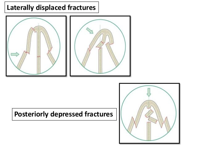 Disarticulation of upper lateral cartilage Anterior nasal spine fracture
