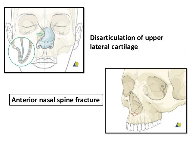 • The nasal septum is almost always involved in nasal fractures and must be evaluated to determine if treatment is necessa...